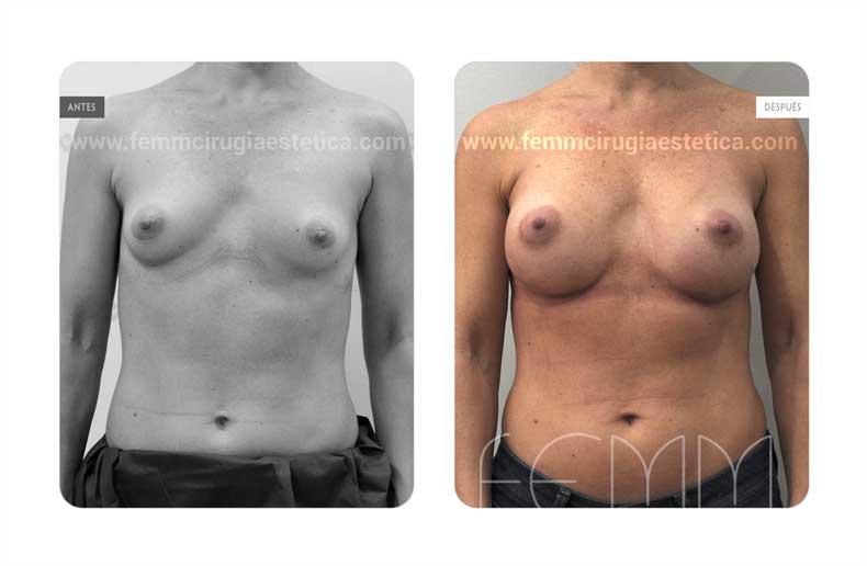 Aumento de pecho con prótesis anatómicas de 350cc · Caso 61 - Fotografía 1