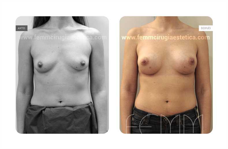 Aumento de pecho con prótesis anatómicas de 280cc · Caso 62 - Fotografía 1