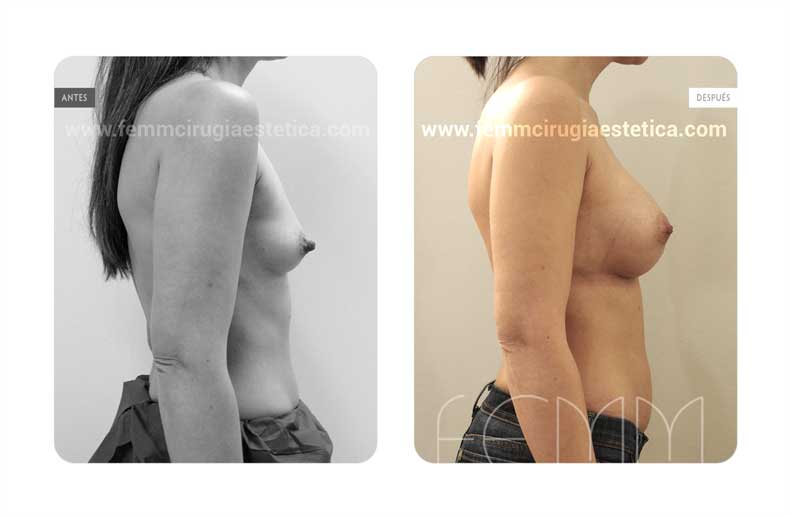 Aumento de pecho con prótesis anatómicas de 280cc · Caso 62 - Fotografía 3
