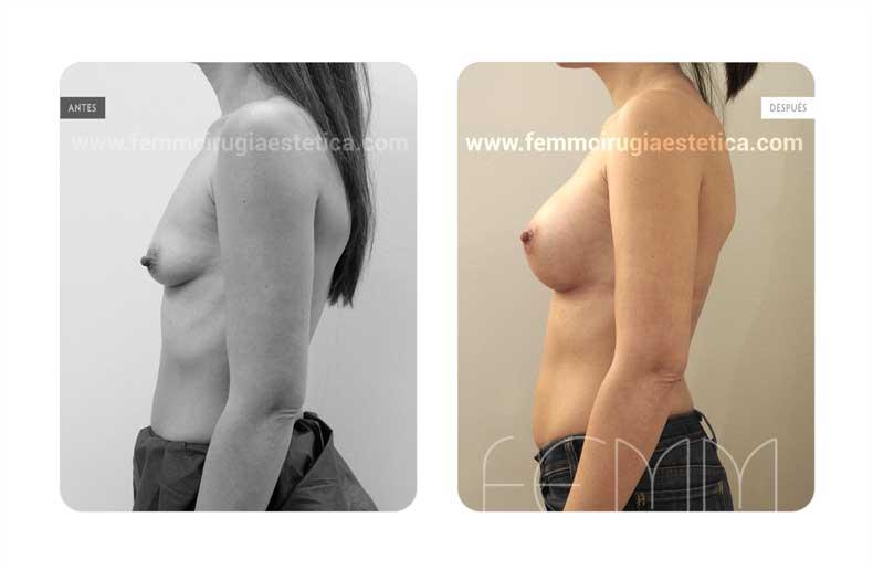 Aumento de pecho con prótesis anatómicas de 280cc · Caso 62 - Fotografía 5