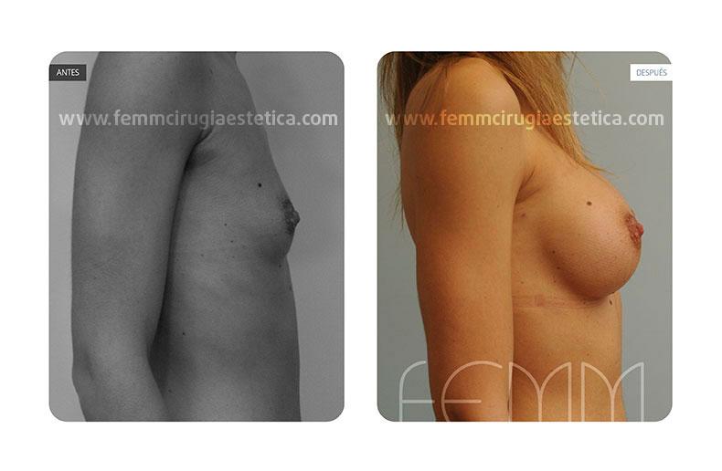 Aumento de pecho con prótesis anatómicas de 290cc · Caso 20 - Fotografía 2