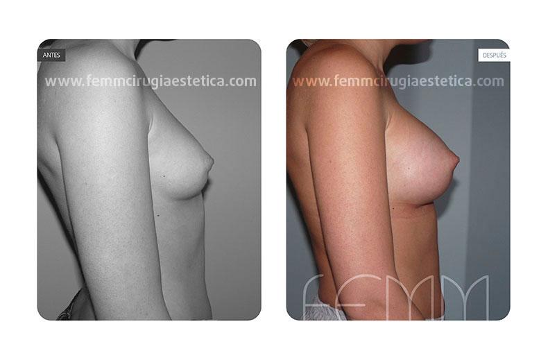 Aumento de pecho con prótesis anatómicas de 290cc · Caso 24 - Fotografía 1