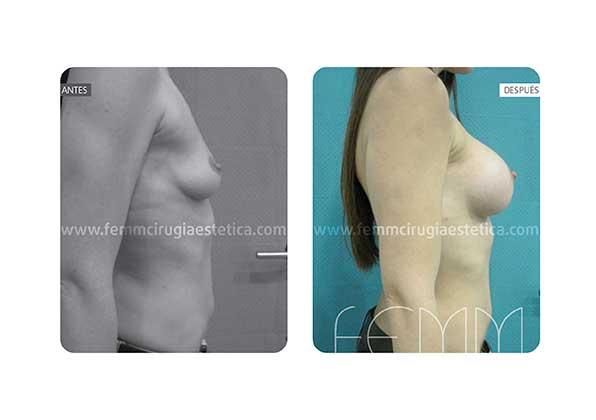 Aumento de pecho con prótesis redondas de 375cc · Caso 210 - Fotografía 1