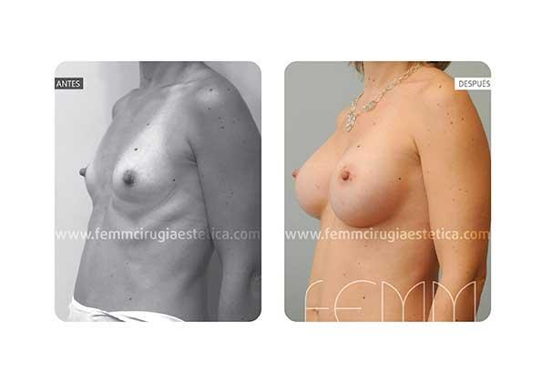 Aumento de pecho con prótesis anatómicas de 320cc · Caso 3 - Fotografía 3