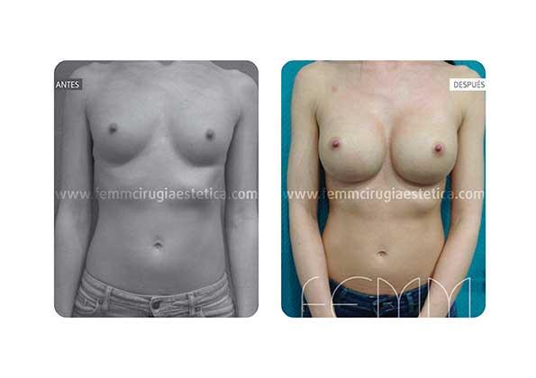 Aumento de pecho con prótesis anatómicas de 305cc · Caso 4 - Fotografía 4