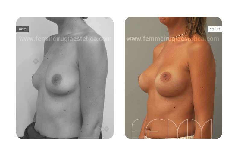 Aumento de pecho con prótesis anatómicas de 280cc · Caso 29 - Fotografía 2