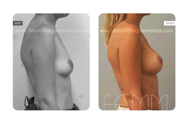 Aumento de pecho con prótesis anatómicas de 280cc · Caso 29 - Fotografía 4