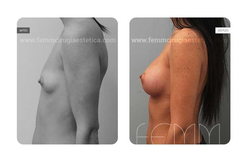 Aumento de pecho con prótesis anatómicas de 320cc · Caso 31 - Fotografía 1