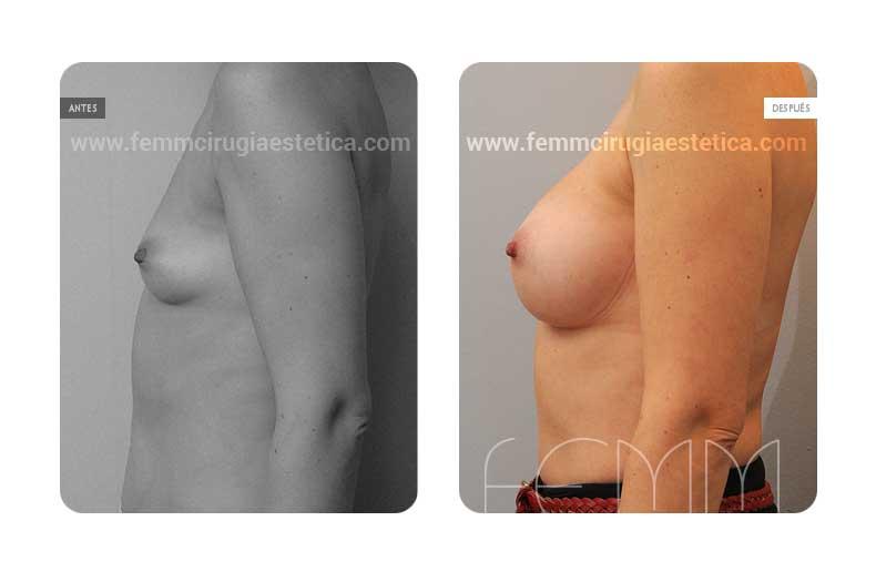Aumento de pecho con prótesis anatómicas de 360cc · Caso 5 - Fotografía 1