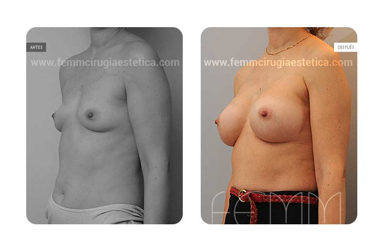 Aumento de pecho con prótesis anatómicas de 360cc · Caso 5 - Fotografía 2