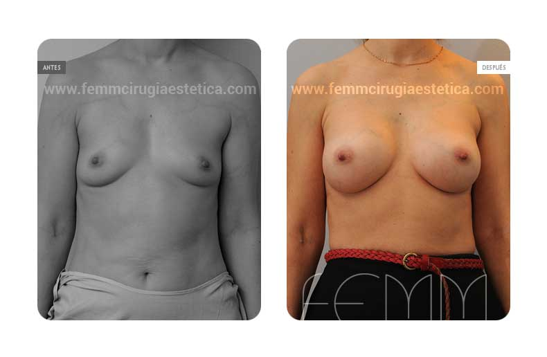 Aumento de pecho con prótesis anatómicas de 360cc · Caso 5 - Fotografía 3