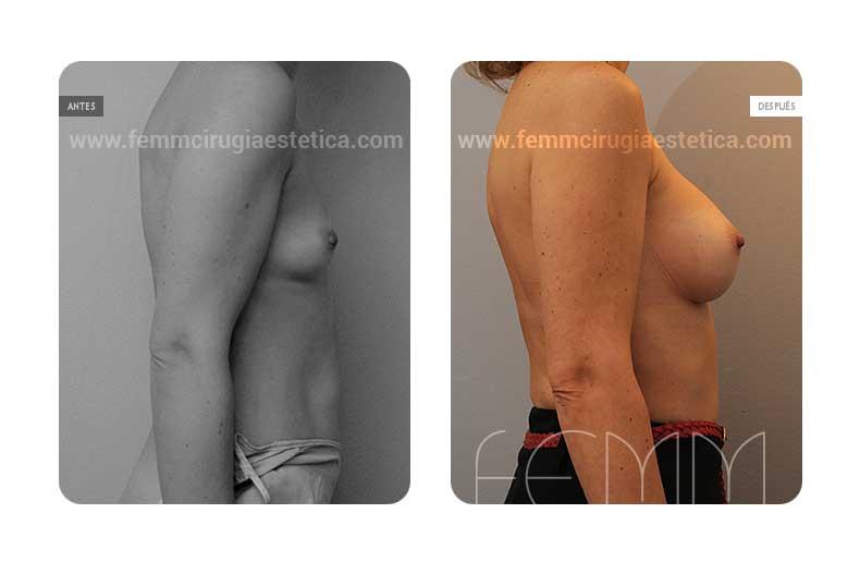 Aumento de pecho con prótesis anatómicas de 360cc · Caso 5 - Fotografía 4