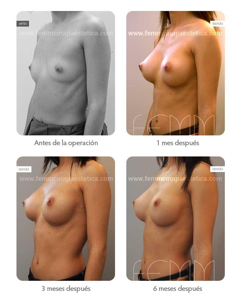 Aumento de pecho con prótesis anatómicas de 290cc · Caso 32 - Fotografía 2