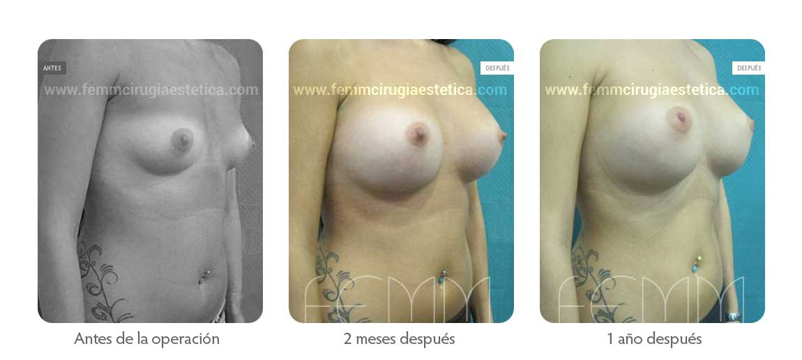 Aumento de pecho con prótesis anatómicas de 410cc · Caso 33 - Fotografía 3