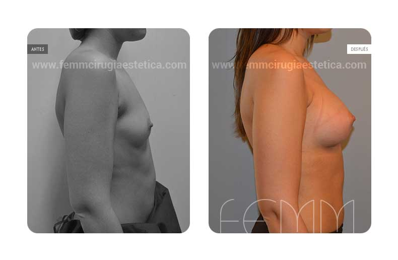 Aumento de pecho con prótesis anatómicas de 290cc · Caso 35 - Fotografía 1