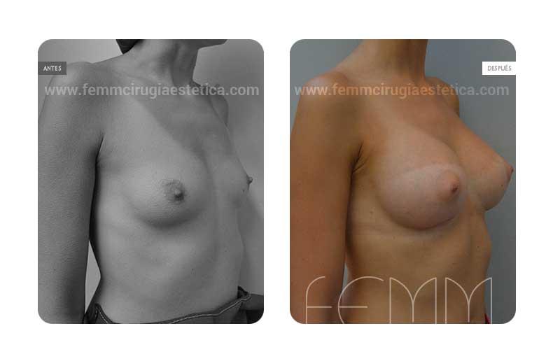 Aumento de pecho con prótesis anatómicas de 320cc · Caso 7 - Fotografía 1