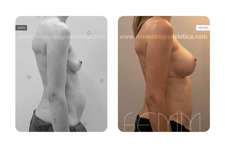 Aumento de pecho con prótesis anatómicas de 325cc · Caso 36 - Fotografía 1