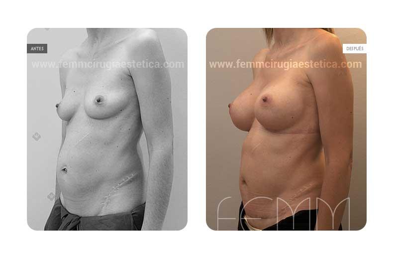 Aumento de pecho con prótesis anatómicas de 325cc · Caso 36 - Fotografía 2