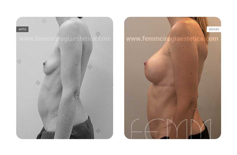 Aumento de pecho con prótesis anatómicas de 325cc · Caso 36 - Fotografía 3