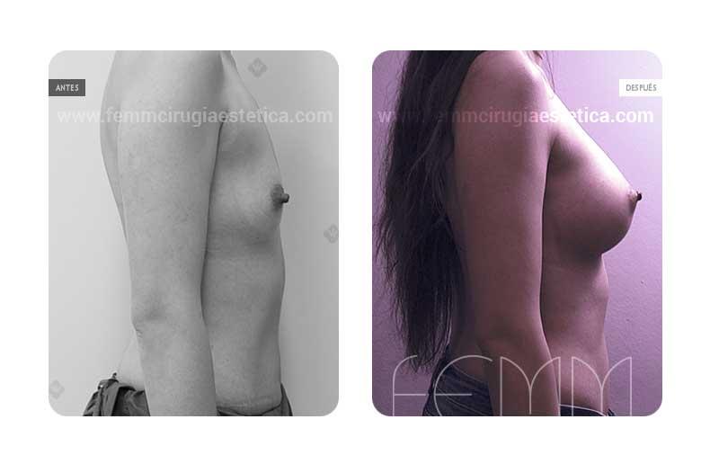 Aumento de pecho con prótesis anatómicas de 410cc · Caso 8 - Fotografía 1