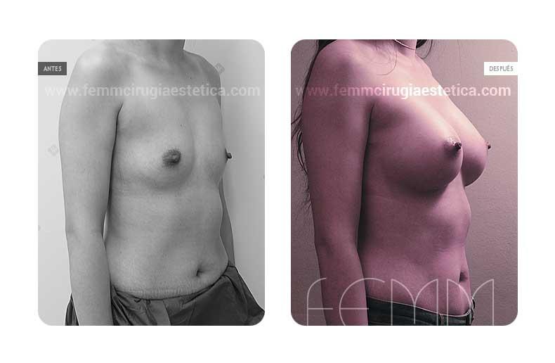 Aumento de pecho con prótesis anatómicas de 410cc · Caso 8 - Fotografía 2