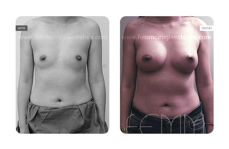 Aumento de pecho con prótesis anatómicas de 410cc · Caso 8 - Fotografía 3