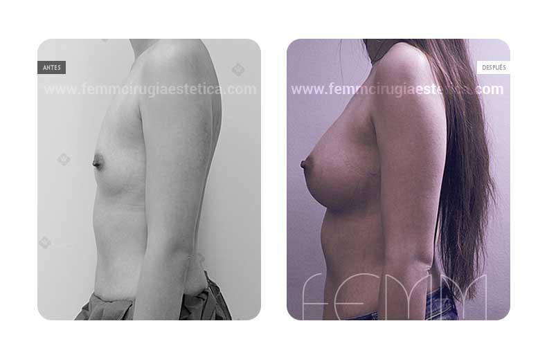 Aumento de pecho con prótesis anatómicas de 410cc · Caso 8 - Fotografía 5