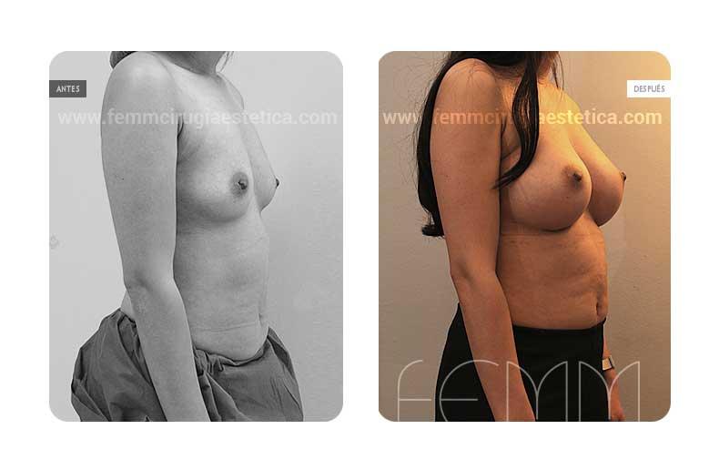 Aumento de pecho con prótesis anatómicas de 410cc · Caso 37 - Fotografía 2