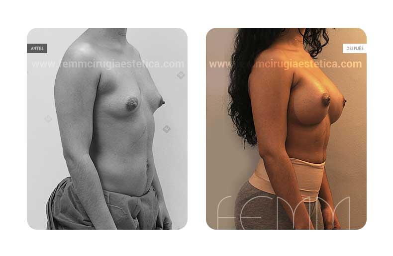 Aumento de pecho con prótesis anatómicas de 445cc · Caso 38 - Fotografía 2