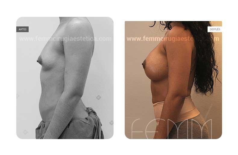 Aumento de pecho con prótesis anatómicas de 445cc · Caso 38 - Fotografía 5