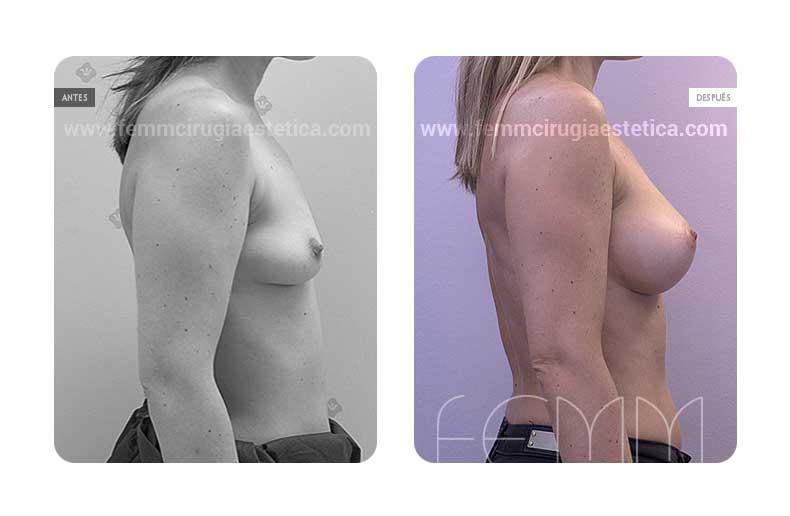 Aumento de pecho con prótesis anatómicas de 335cc · Caso 39 - Fotografía 1