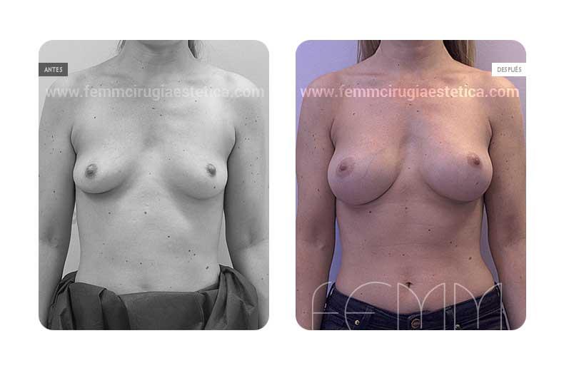 Aumento de pecho con prótesis anatómicas de 335cc · Caso 39 - Fotografía 2