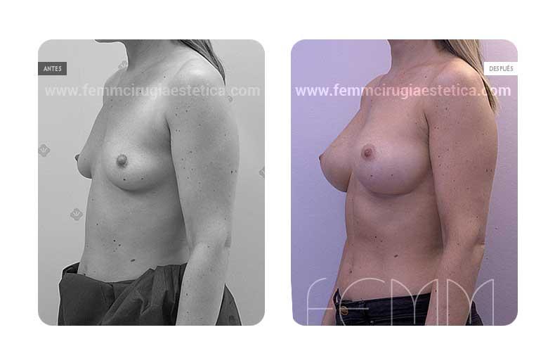 Aumento de pecho con prótesis anatómicas de 335cc · Caso 39 - Fotografía 3