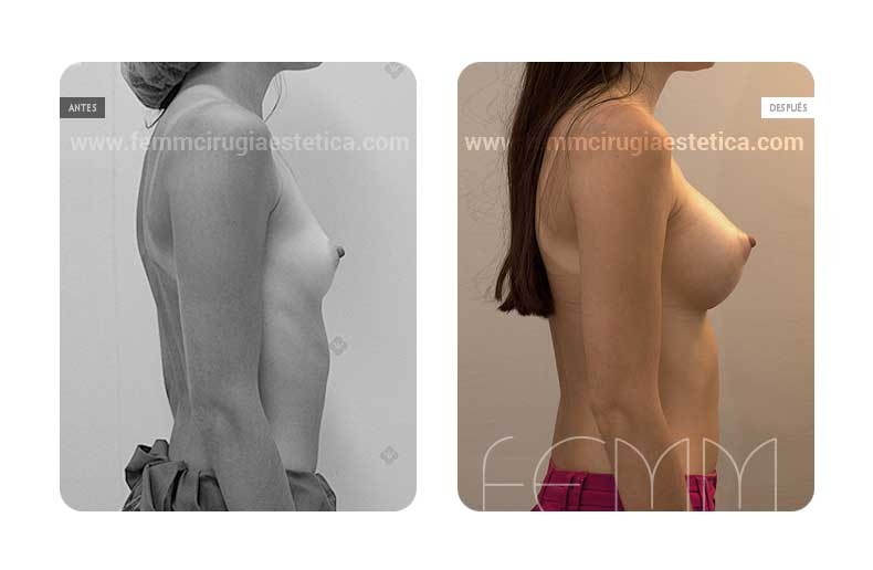 Aumento de pecho con prótesis anatómicas de 290cc · Caso 10 - Fotografía 1