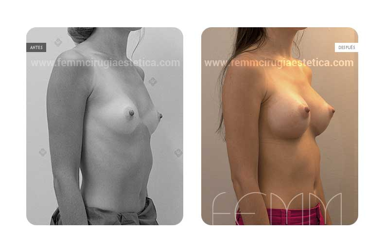Aumento de pecho con prótesis anatómicas de 290cc · Caso 10 - Fotografía 2