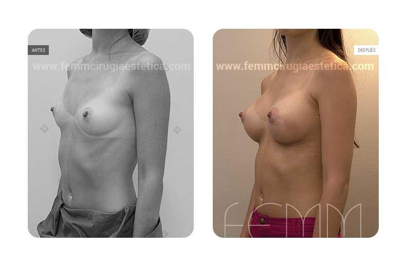 Aumento de pecho con prótesis anatómicas de 290cc · Caso 10 - Fotografía 4