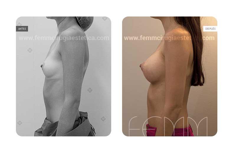 Aumento de pecho con prótesis anatómicas de 290cc · Caso 10 - Fotografía 5