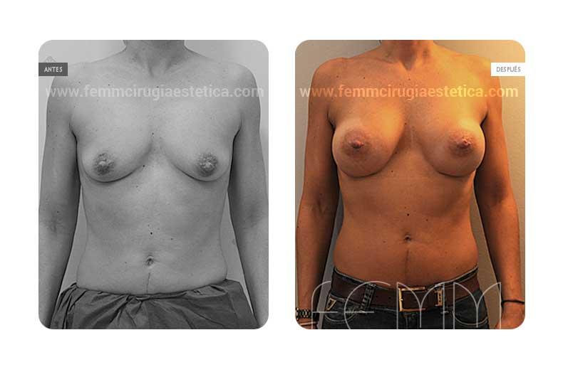 Aumento de pecho con prótesis anatómicas de 370cc · Caso 41 - Fotografía 3