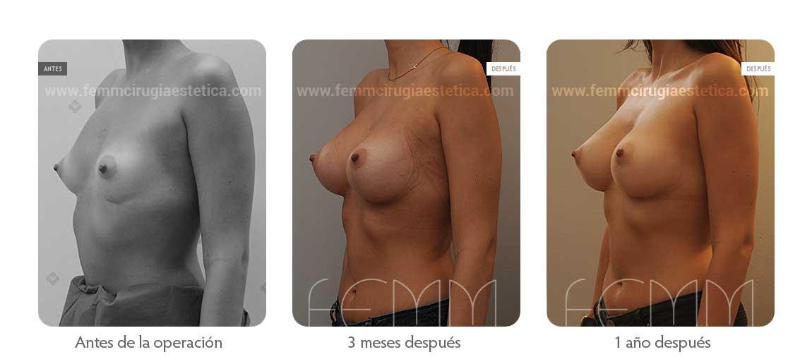 Aumento de pecho con prótesis anatómicas de 290cc · Caso 42 - Fotografía 4