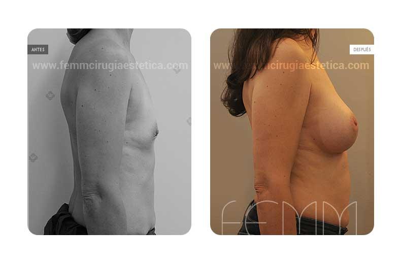 Aumento de pecho con prótesis anatómicas de 370cc · Caso 43 - Fotografía 1