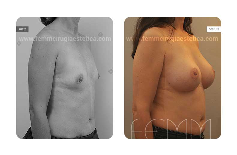 Aumento de pecho con prótesis anatómicas de 370cc · Caso 43 - Fotografía 2