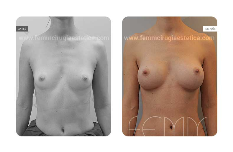 Aumento de pecho con prótesis anatómicas de 325cc · Caso 45 - Fotografía 1