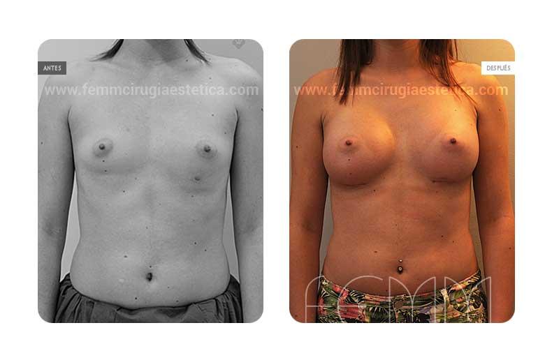 Aumento de pecho con prótesis anatómicas de 410cc · Caso 46 - Fotografía 2