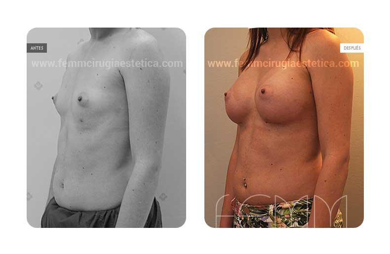 Aumento de pecho con prótesis anatómicas de 410cc · Caso 46 - Fotografía 3