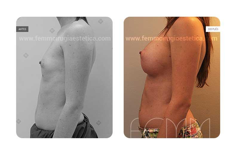 Aumento de pecho con prótesis anatómicas de 410cc · Caso 46 - Fotografía 4