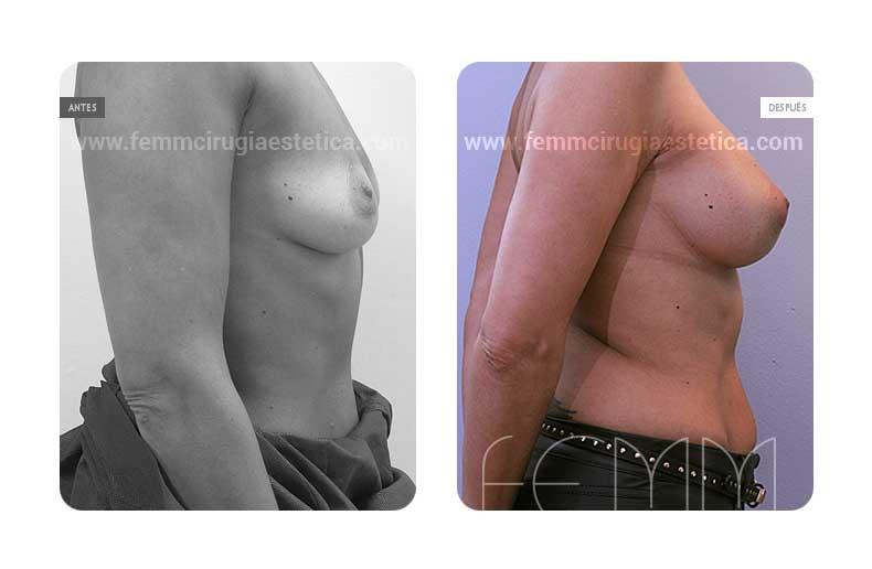 Aumento de pecho con prótesis anatómicas de 335cc · Caso 47 - Fotografía 1