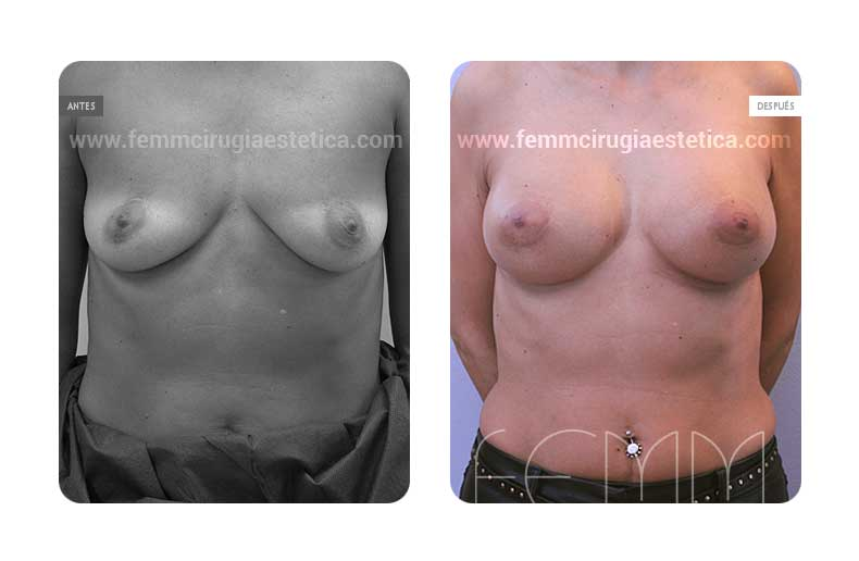 Aumento de pecho con prótesis anatómicas de 335cc · Caso 47 - Fotografía 2