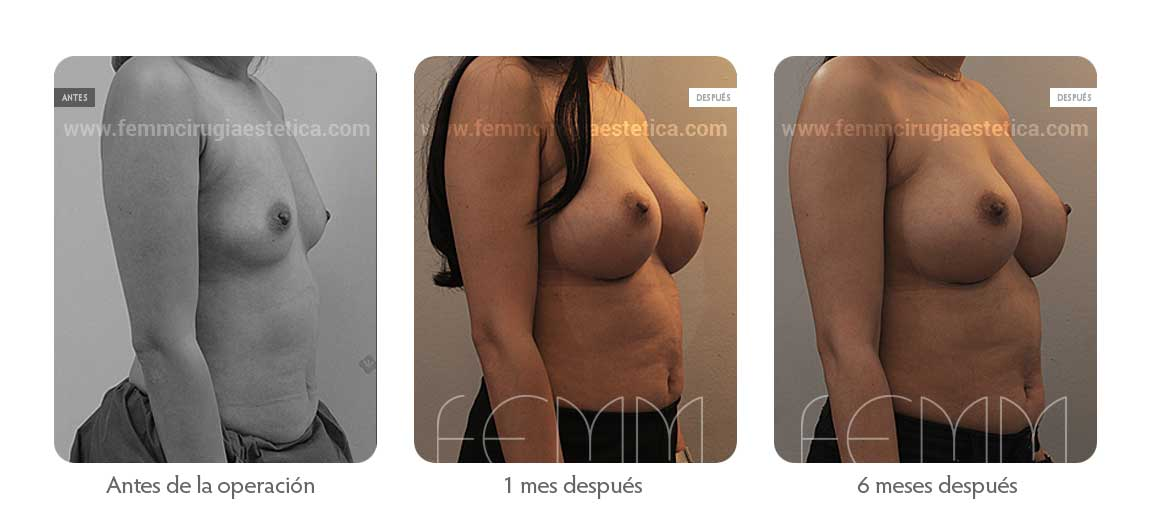 Aumento de pecho con prótesis anatómicas de 410cc · Caso 49 - Fotografía 2