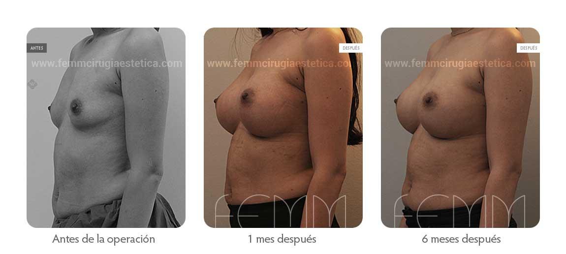 Aumento de pecho con prótesis anatómicas de 410cc · Caso 49 - Fotografía 4