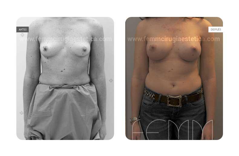 Aumento de pecho con prótesis anatómicas de 320cc · Caso 50 - Fotografía 2